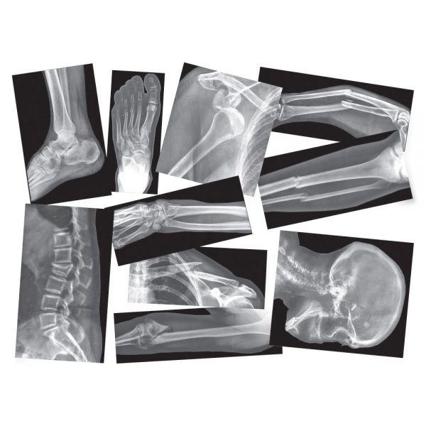 Roylco Broken Bones X-Ray
