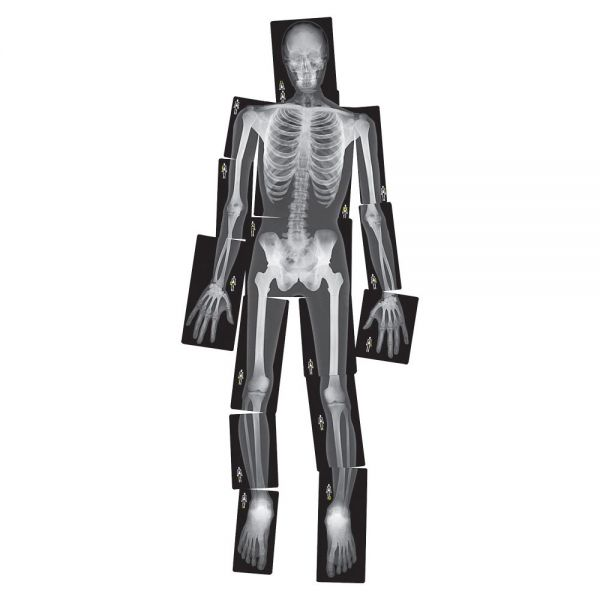 Roylco True to Life Human X-rays Set